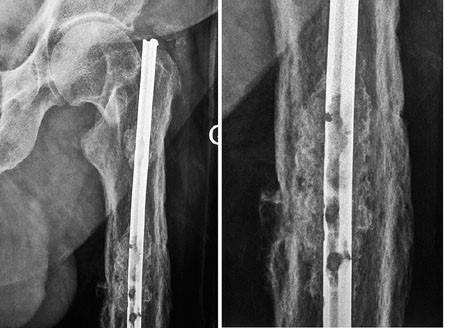 Clou ayant subi une corrosion sur 56 ans (image maitriseorthopédique.com).
